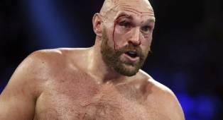 Tyson Fury: Conor McGregor Bisa Kalahkan Dustin Poirier Kali Ini