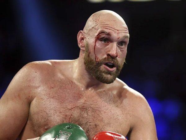 Tyson Fury: McGreggor bisa tutup trilogi McGregor vs Poirier dengan kemenangan. (Isaac Berken / Associated Press)